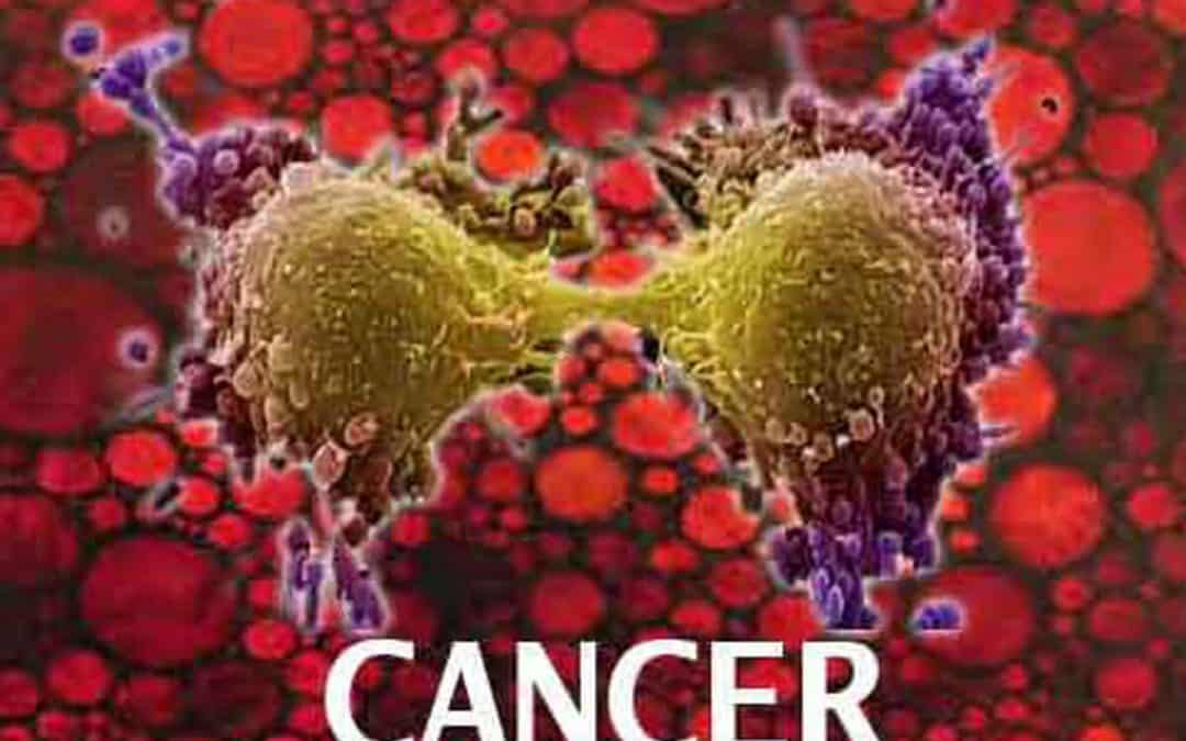Cancer to be A Major Disease in India: Change in Lifestyle Main Culprit