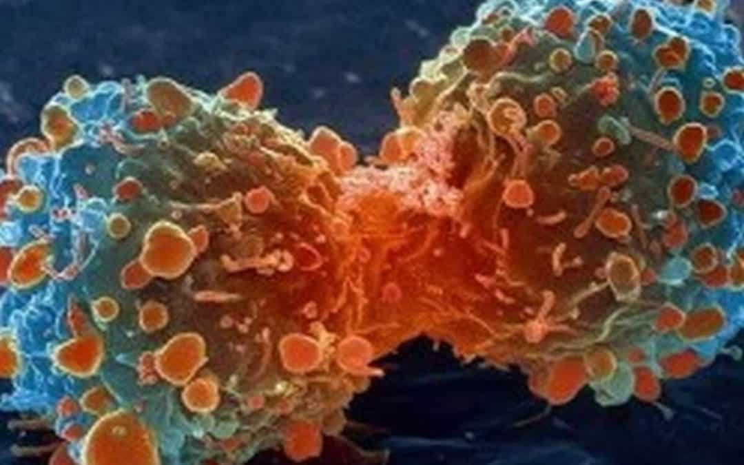 Lifestyle change and Cancer