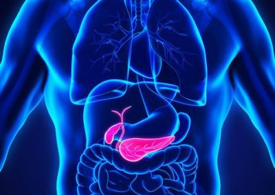 Pancreatic cancer the dangerous killer