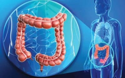 Colorectal cancers on a rise: signs and treatment