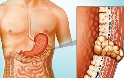 Gastrointestinal Stromal Tumors (GIST) Awareness Day